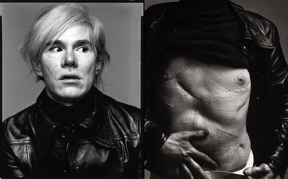 Andy Warhol death- All facts and reasons in short